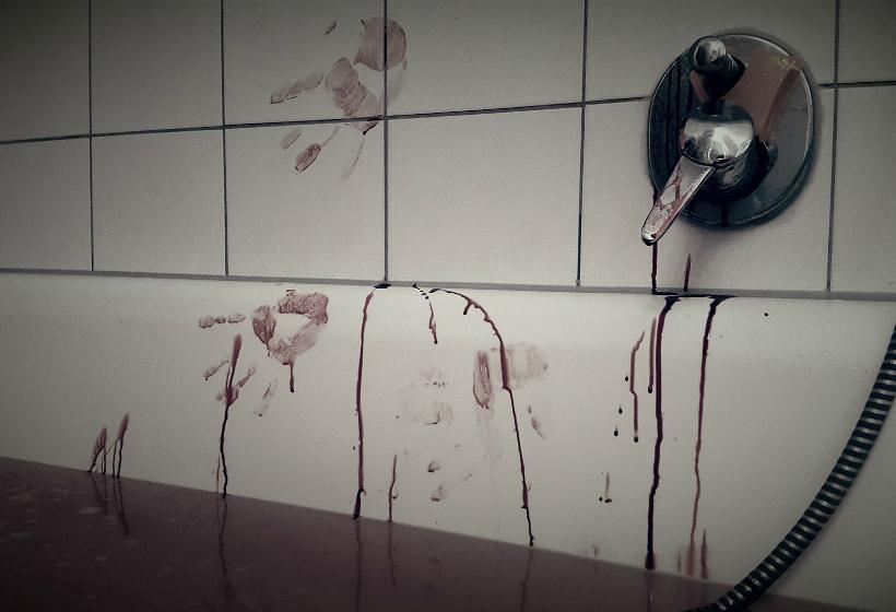 Житель Серпухова отрубил супруге кисть руки, заподозрив ее в неверности