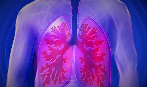 Верховный Суд РФ разъяснил как надо бороться с туберкулезом