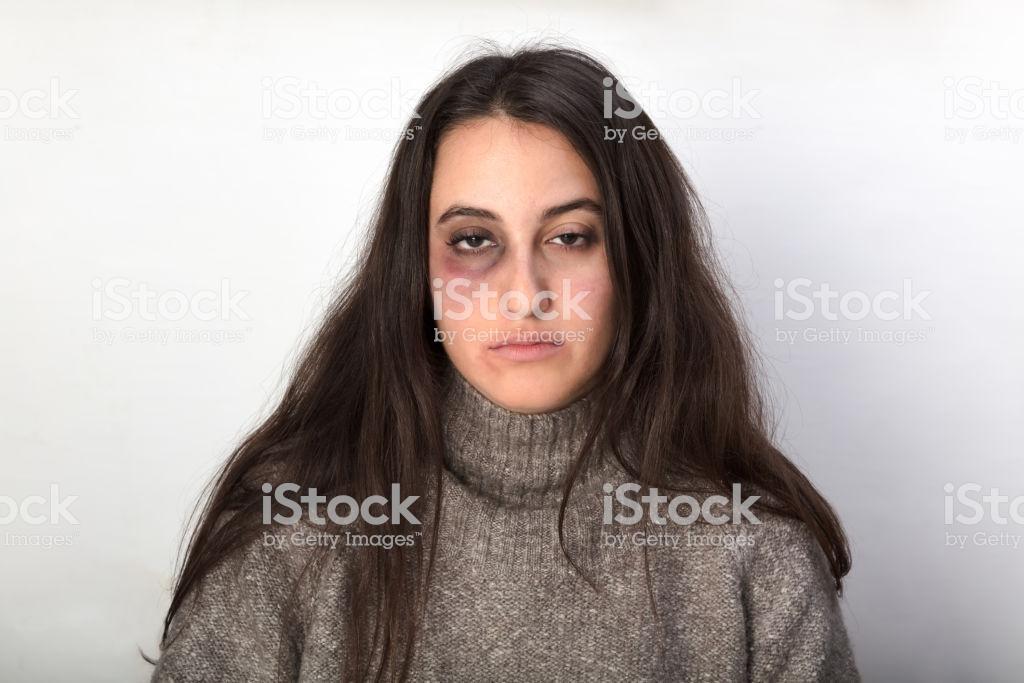 Насилия будет меньше. Опубликован проект закона о домашнем насилии в России