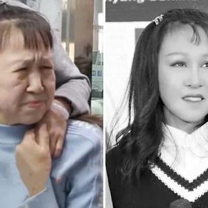 15-летняя китайская девочка с лицом старушки. Что стало с ней после операции.